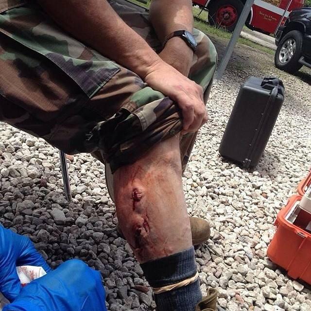 leg gun shot wound