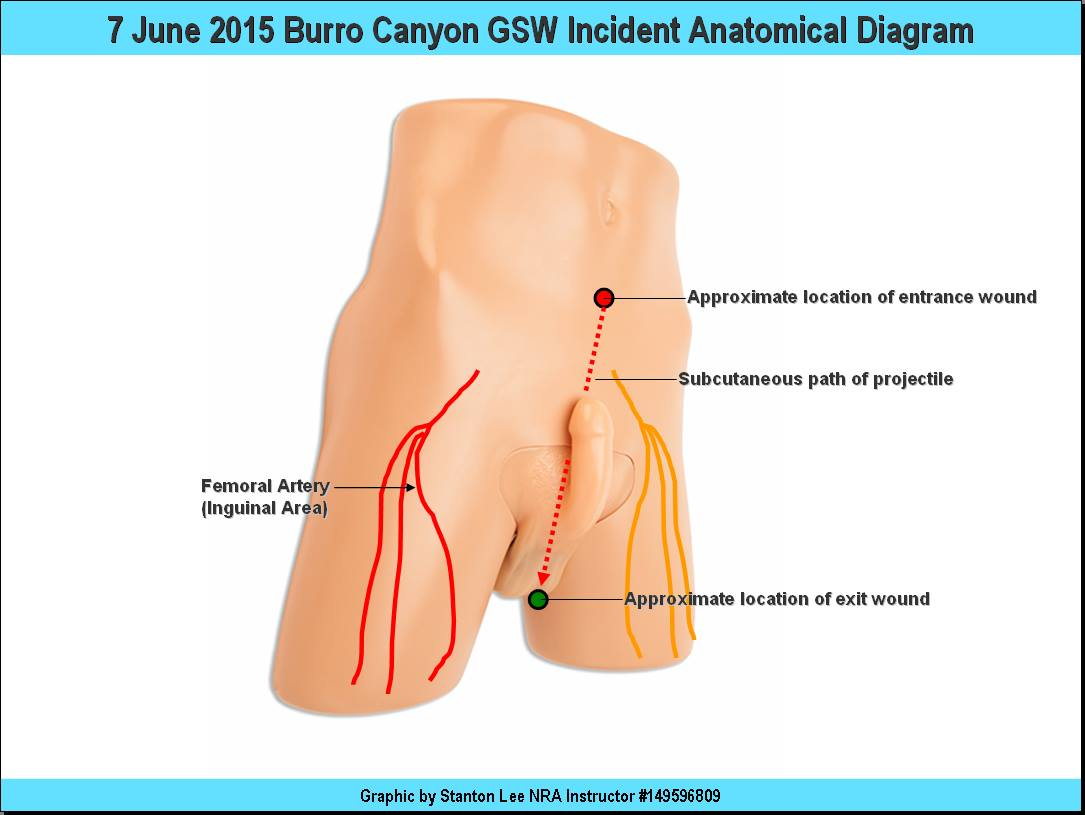 7 June 2015 Burro Canyon Gunshot Wound Incident